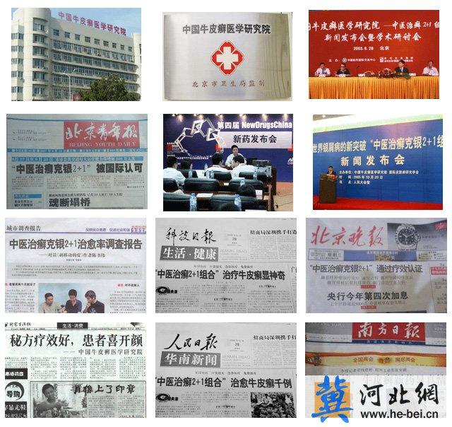 中国牛皮癣医学研究院,方草克银灵胶囊,治疗牛皮癣的专家